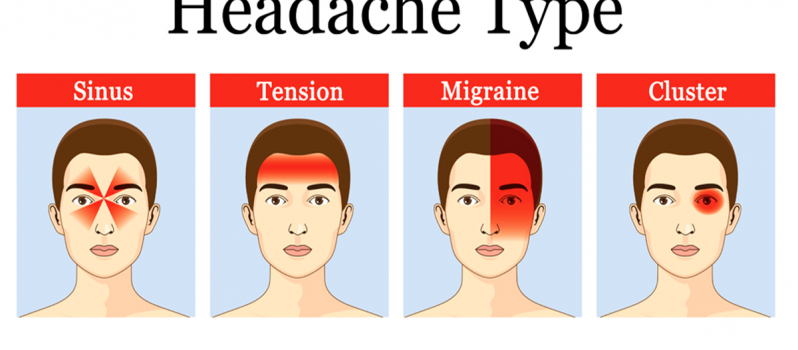 types-of-headaches